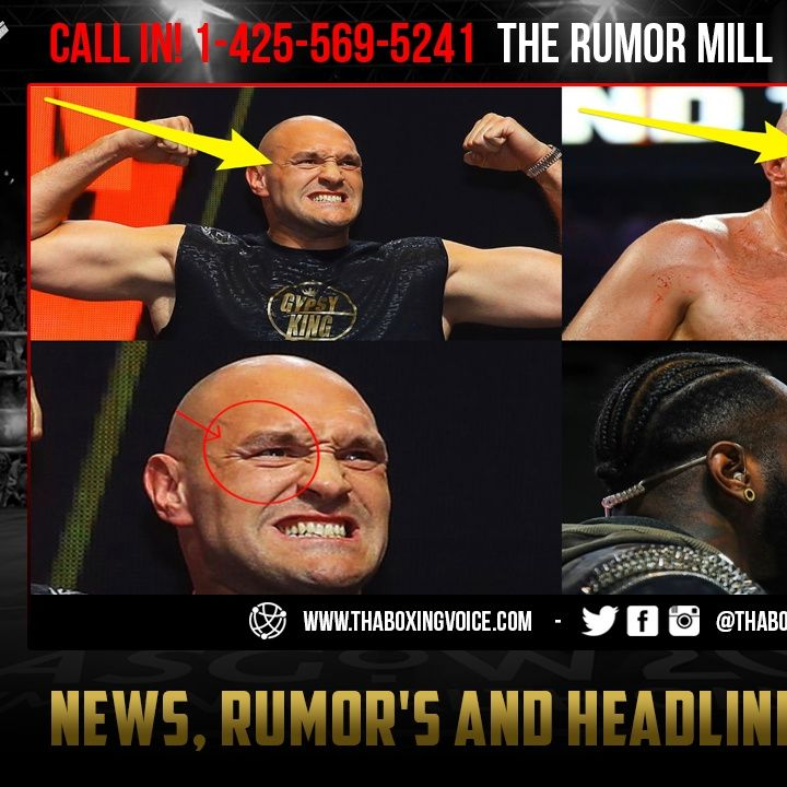 ☎️Wilder vs Fury 2: Rumor Tyson Fury Cut Re-Opened in SPARRING According to Deontay Wilder😱