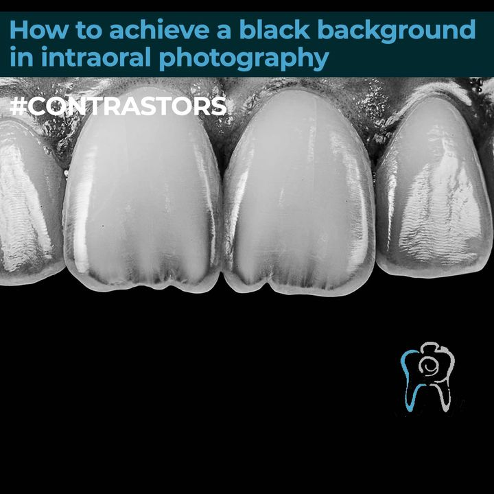 How to get a black background in intraoral photography #CONTRASTORS