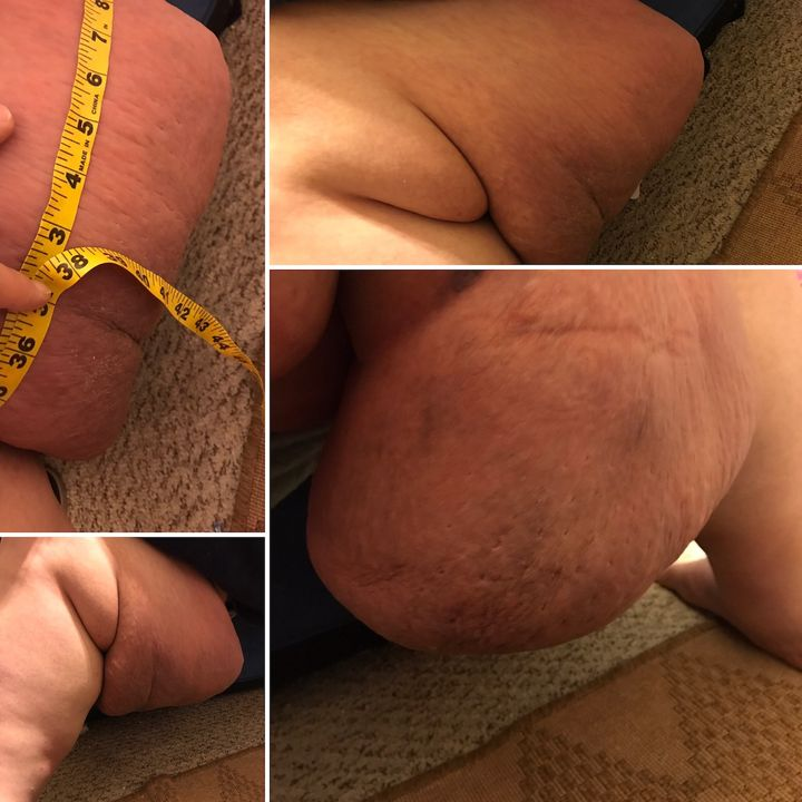 Lymphedema with Melvin Osburn PT1