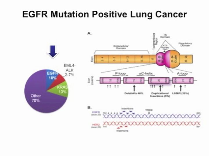 Highlights in Lung Cancer, 2012: New Options for EGFR Mutation-Positive NSCLC (video)