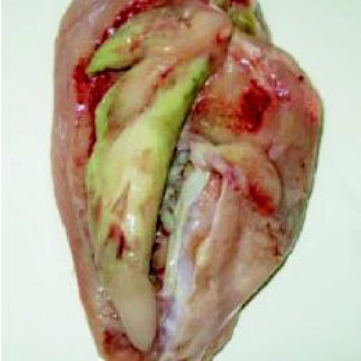 Diseases of Musculo-Skeletal System (Deep Pectoral Myopathy)